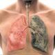 Вред резкого отказа от сигарет