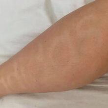 Воспользовавшись лосьоном для загара, женщина наутро проснулась с надписью на ноге
