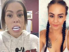 Фальшивые зубы, заказанные в интернет-магазине, оказались чрезмерно большими