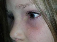 Из глаза маленькой пациентки, приехавшей в больницу, выпал жук